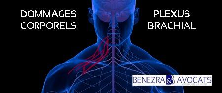 plexus brachial, avocat plexus brachial, évaluer plexus brachial, avocat plexus, indemniser plexus brachial, préjudice plexus brachial, comment indemniser plexus brachial, paralysie du plexus brachial, paralysies du plexus brachial, avocat paralysie du plexus brachial