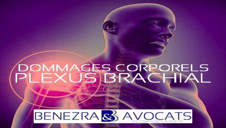 plexus brachial, avocat plexus brachial, évaluer plexus brachial, avocat plexus, indemniser plexus brachial, préjudice plexus brachial, comment indemniser plexus brachial